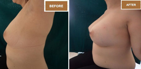 breast implant surgery in Ahmedabad