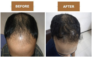 hair transplant clinics in Ahmedabad