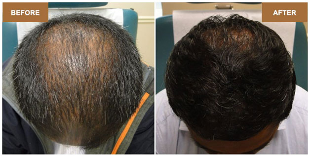 non surgical hair replacement in Ahmedabad