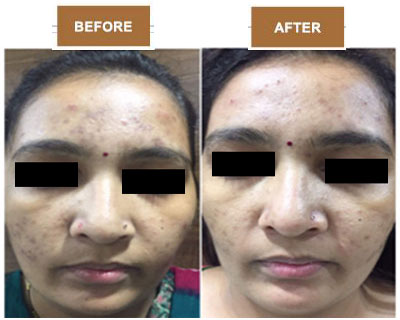 best skin specialist in Ahmedabad